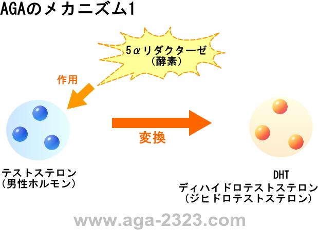 AGA男性型脱毛症のメカニズム1-www.aga-2323.com