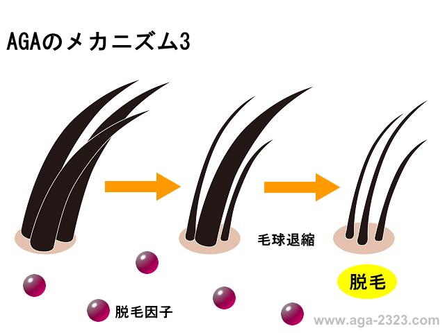 AGA男性型脱毛症のメカニズム3-www.aga-2323.com