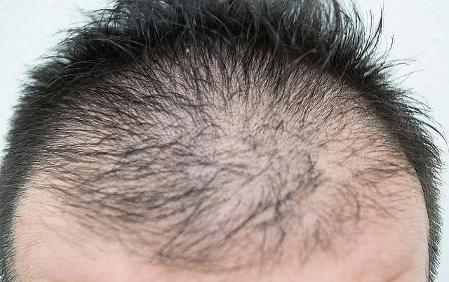 AGA 男性型脱毛症