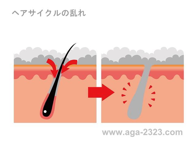 AGA治療-ヘアサイクルの乱れ