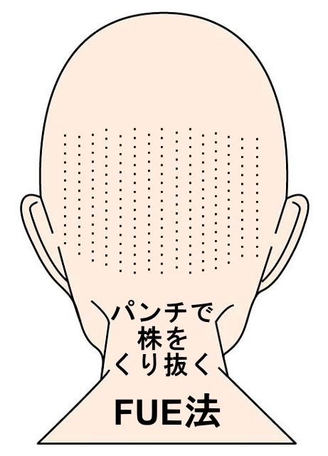 自毛植毛-FUE法