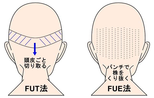 自毛植毛-FUT法とFUE法
